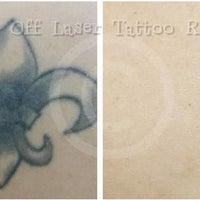 Take It Off Laser Tattoo Removal Louisville KY - East Louisville ...