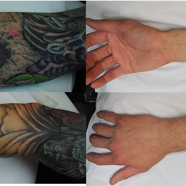 Photos at Oregon Aesthetics & Laser Tattoo Removal - Oregon City, OR