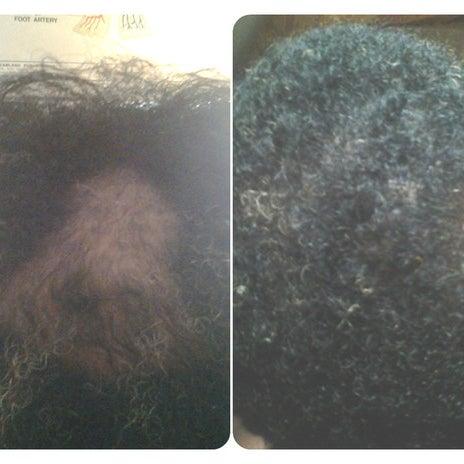 Photos at Hair Loss Control Clinic (HLCC) at David Shifrin