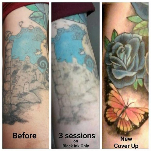 Photos at Take It Off Laser Tattoo Removal Louisville KY - East ...