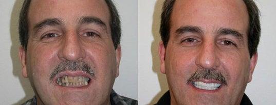 Golpa Dental Implant Center is one of las vegas.