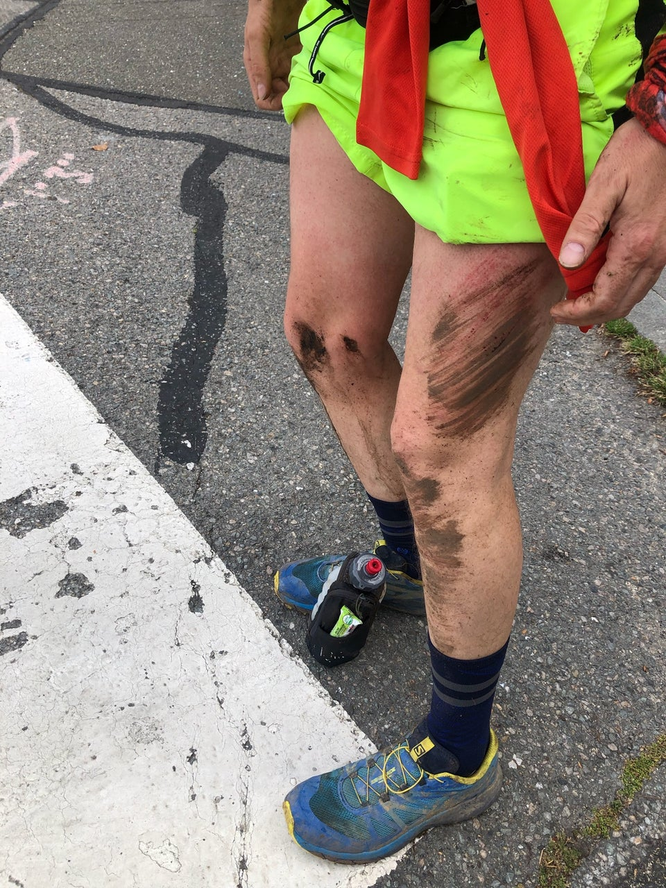 Tantek standing, mud and scrapes on left leg and right shin, standing on asphalt
